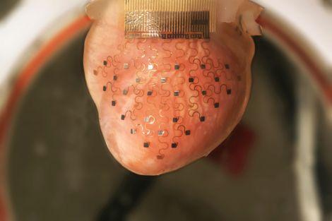 Heart device