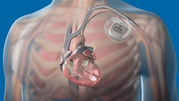 hacker pacemaker