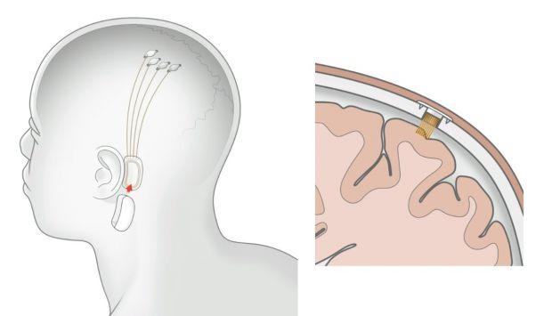 neuralink interfaccia
