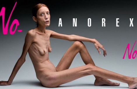 no anorex