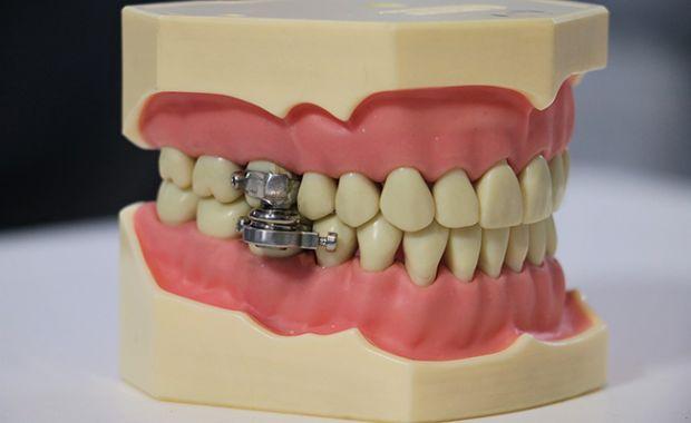 dentalslim01
