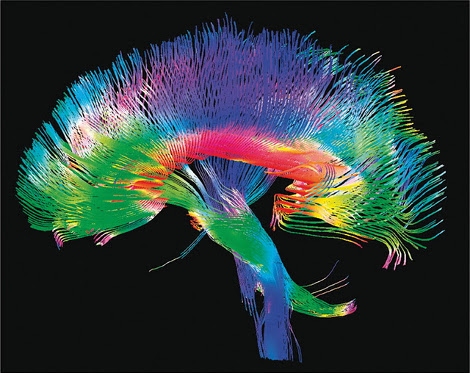 Cervello 12 hub