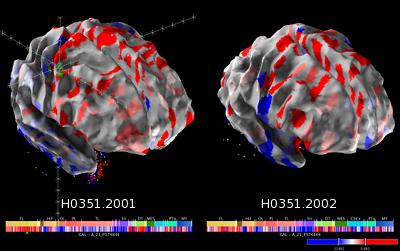 Allen Brain Atlas mappa cervello umano 3D