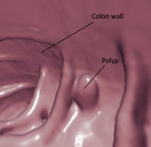 virtual colon polyp 350